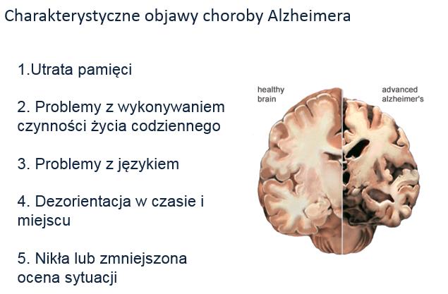 objawy choroby Alzheimera
